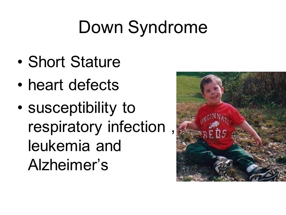 Down Syndrome Short Stature heart defects susceptibility to respiratory infection, leukemia and Alzheimers