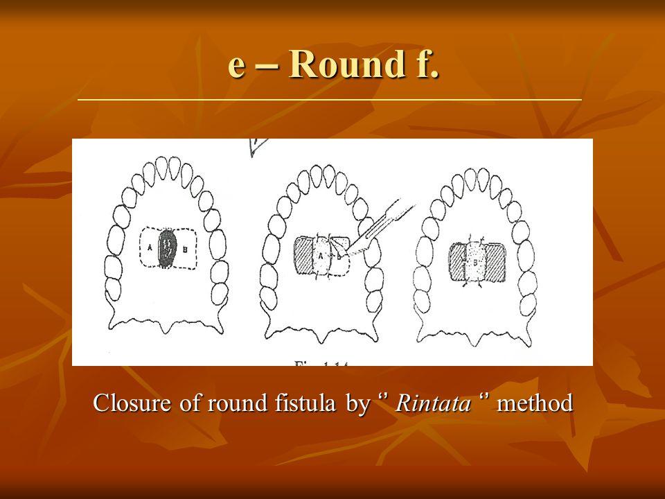 e – Round f. Closure of round fistula by Rintata method