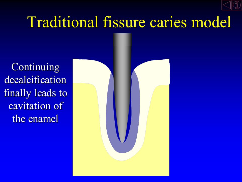 Continuing decalcification finally leads to cavitation of the enamel Traditional fissure caries model