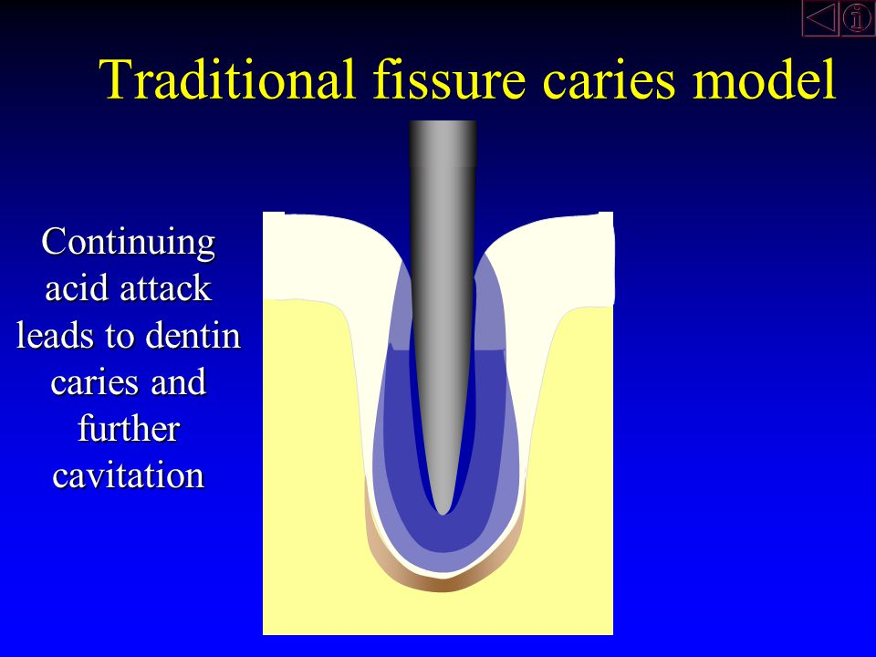 Continuing decalcification finally leads to cavitation of the enamel