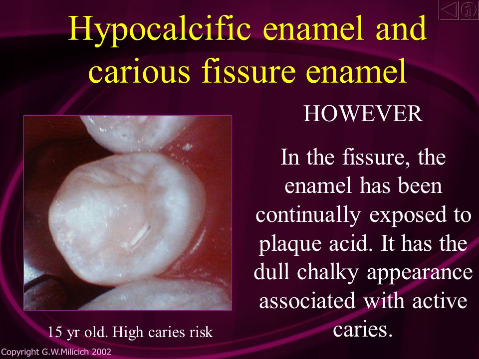 Hypocalcific enamel and carious fissure enamel The fluorotic or hypocalcific enamel on the cusps has remineralized.