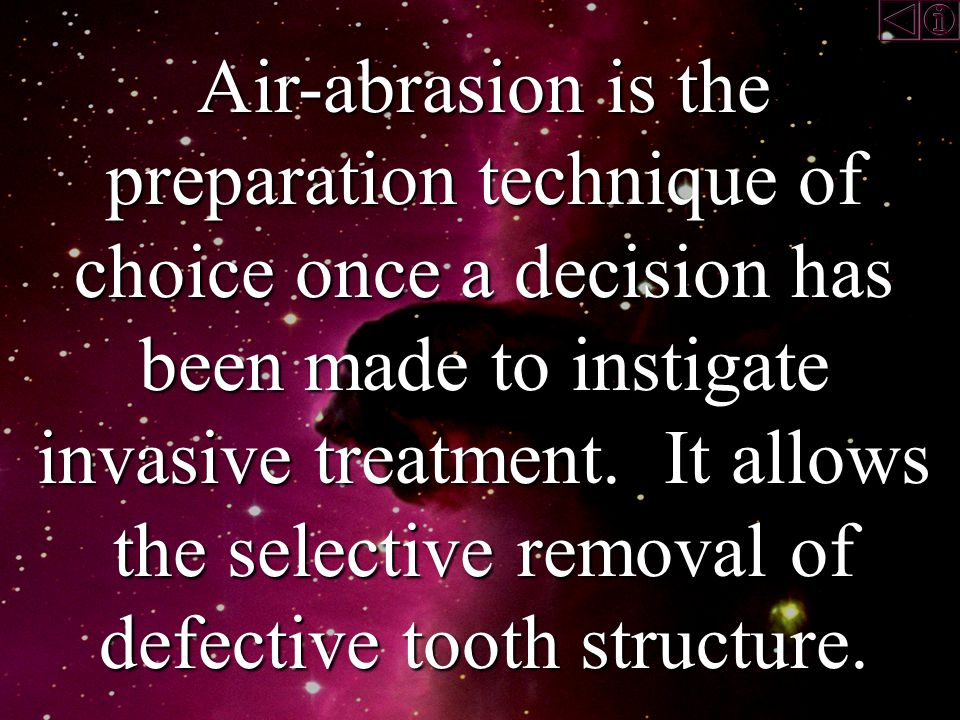 Micro-Dentistry requires a conscious effort to adopt diagnostic, re-mineralization, preparation and restorative techniques that allow for conservation of sound tooth structure