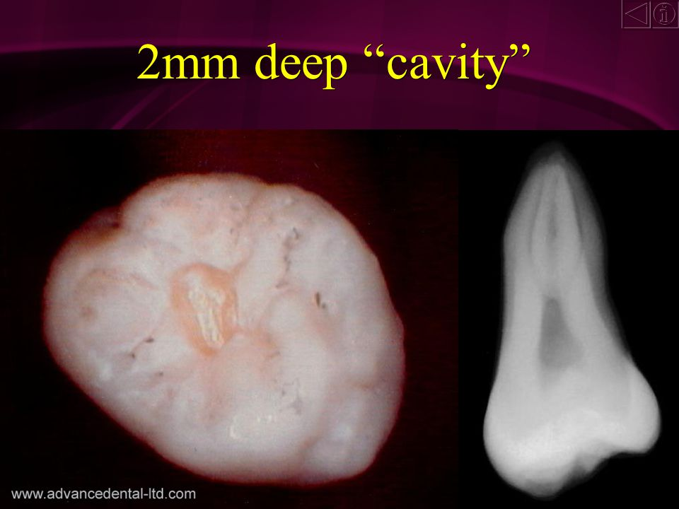 1mm deep cavity