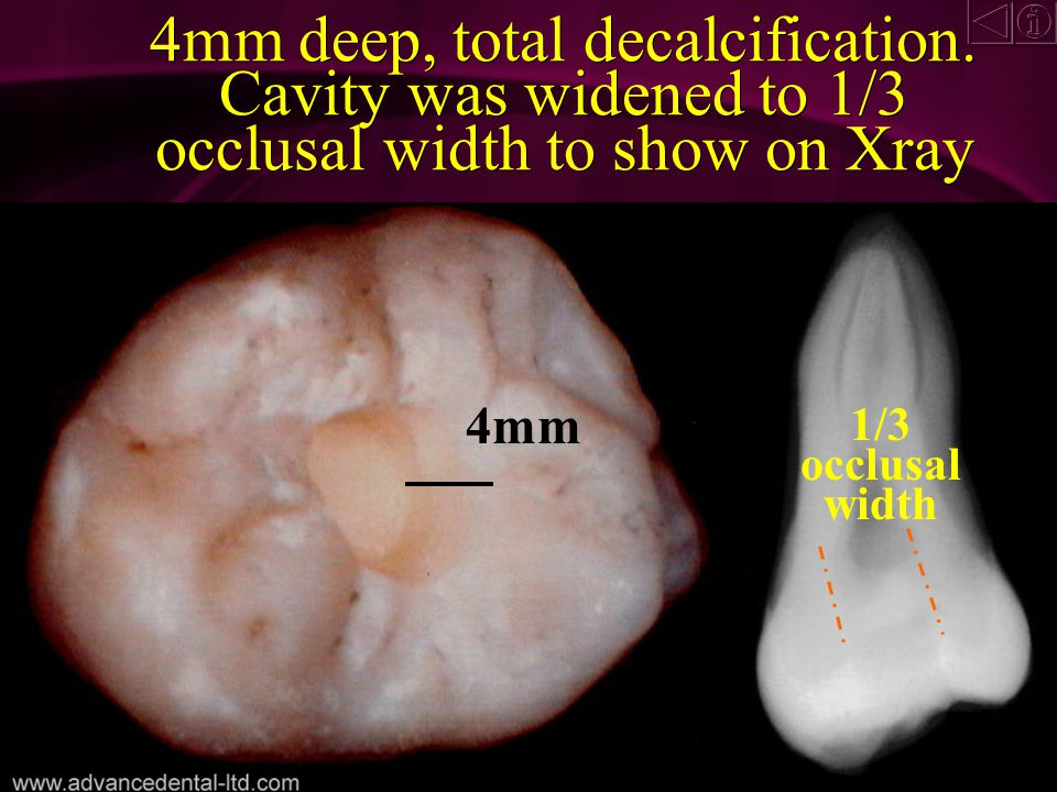 3mm deep cavity