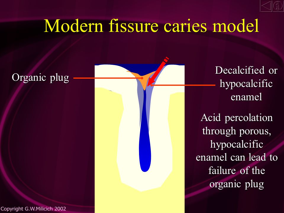 Modern fissure caries model Organic plug