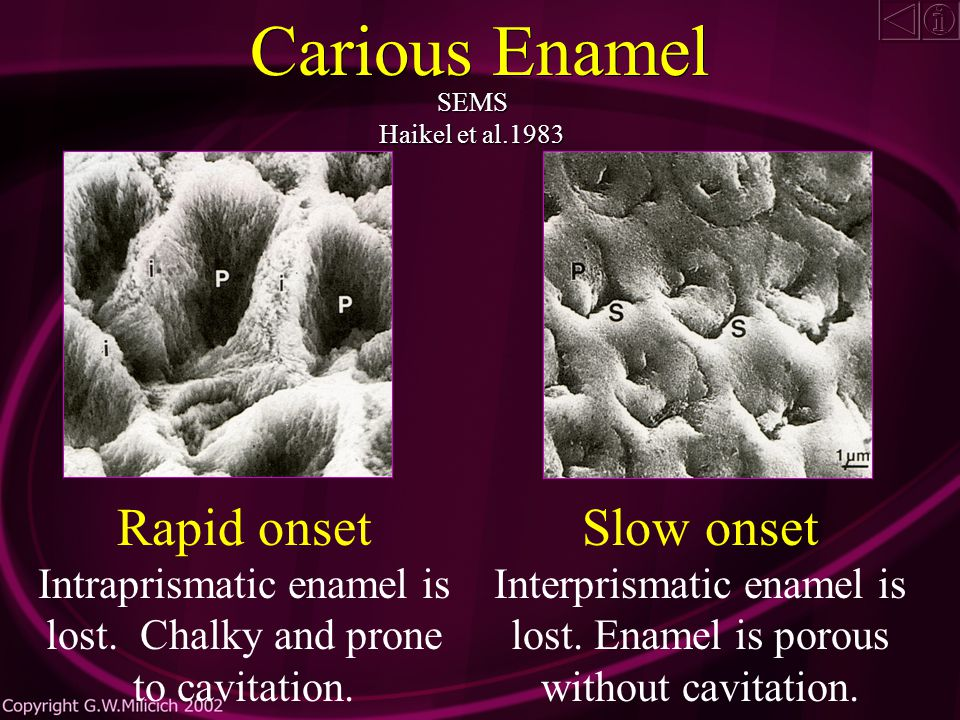 Early Carious Enamel SEMS Thylstrup and Fejerskov 1981 Enamel is micro-porous but macroscopically sound