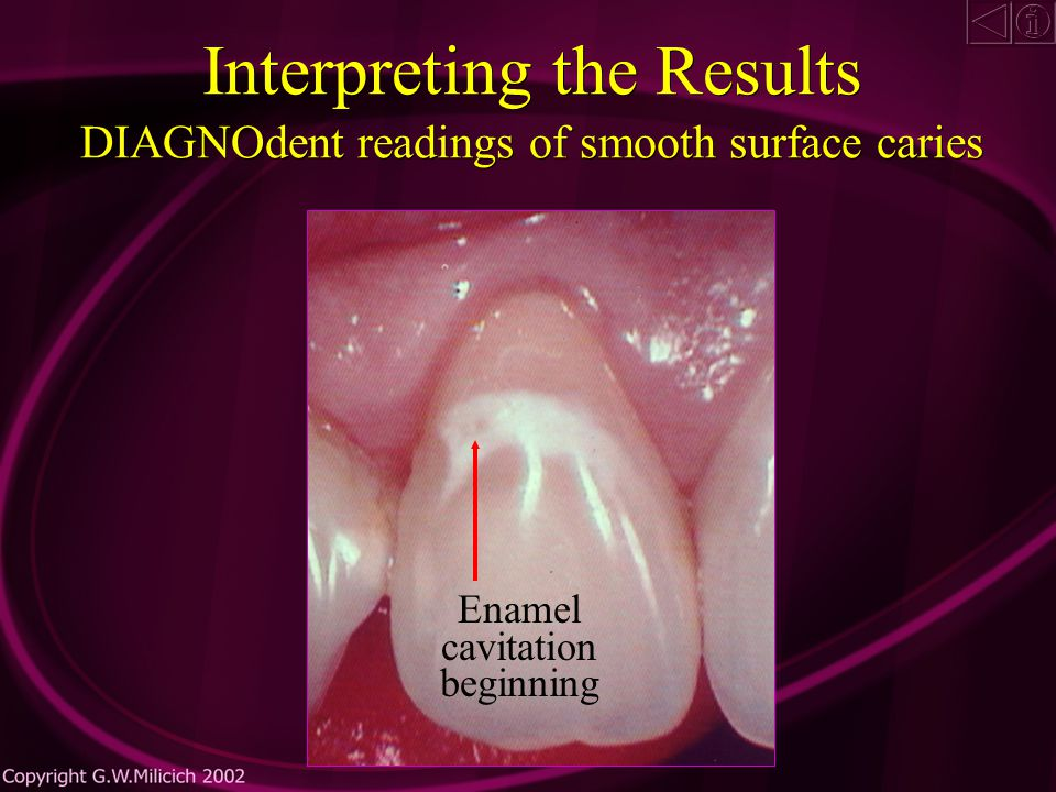 Interpreting the Results ä The DIAGNOdent reacts equally to either form of enamel damage and cannot differentiate between slow onset and rapid onset caries ä Treatment decisions are related to an understanding of the caries process and the recognition of the type of enamel damage present