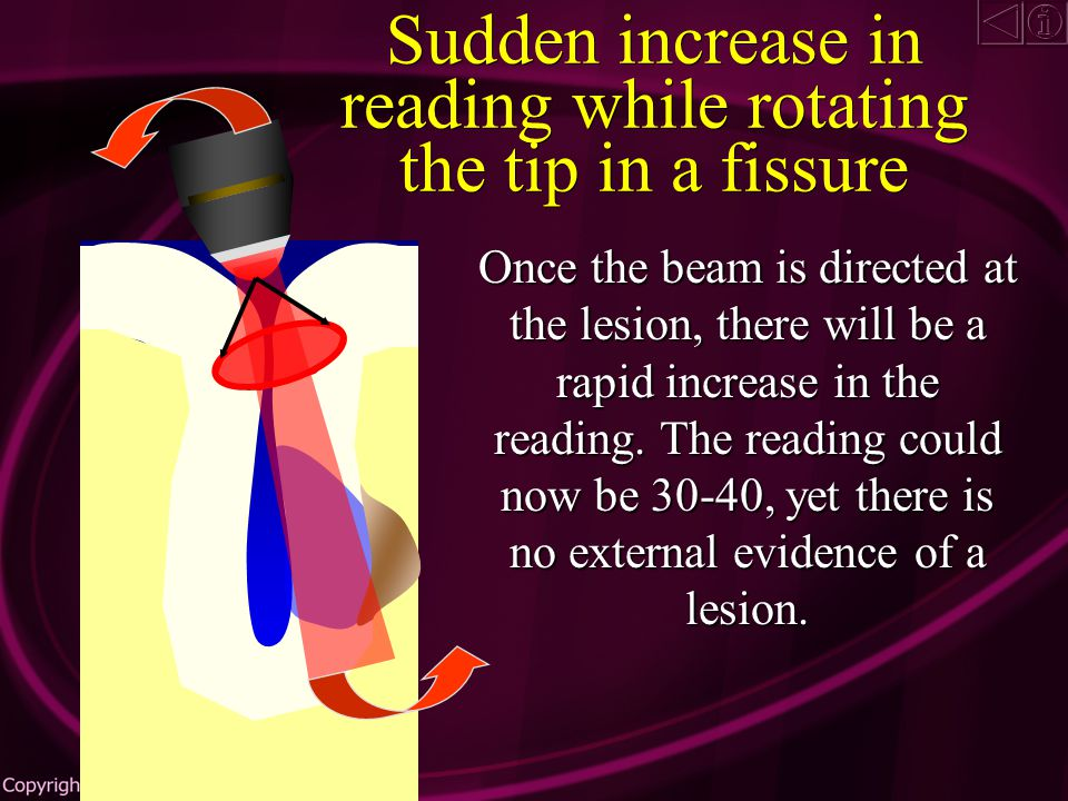 As the beam approaches the carious wall, the reading will begin to increase Sudden increase in reading while rotating the tip in a fissure
