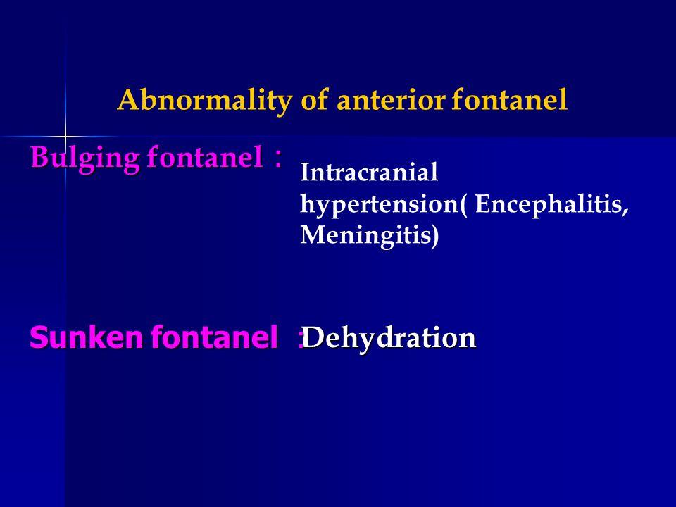 Intracranial hypertension( Encephalitis, Meningitis) Dehydration Abnormality of anterior fontanel Bulging fontanel Bulging fontanel Sunken fontanel Sunken fontanel