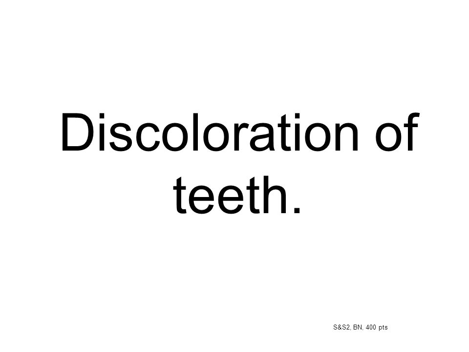 Discoloration of teeth. S&S2, BN, 400 pts
