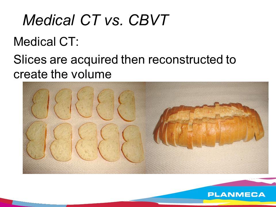 Medical CT vs. CBVT Medical CT: Slices are acquired then reconstructed to create the volume
