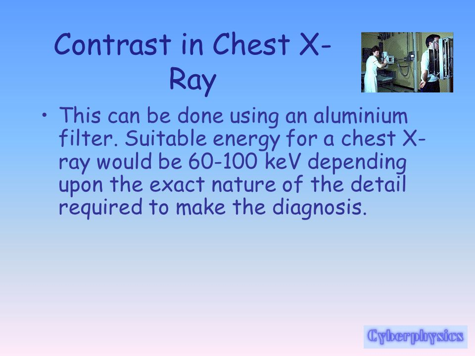 Contrast in Chest X- Ray In a chest X-ray the densities of tissue to be investigated is diverse (bone/lung/heart) and harder X-rays can be employed.