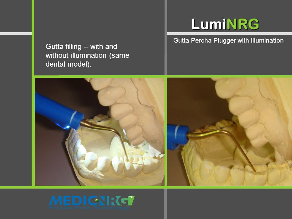 Illuminated Mirror - Two in One LumiNRG Gutta Percha Plugger with illumination Gutta filling – with and without illumination (same dental model).