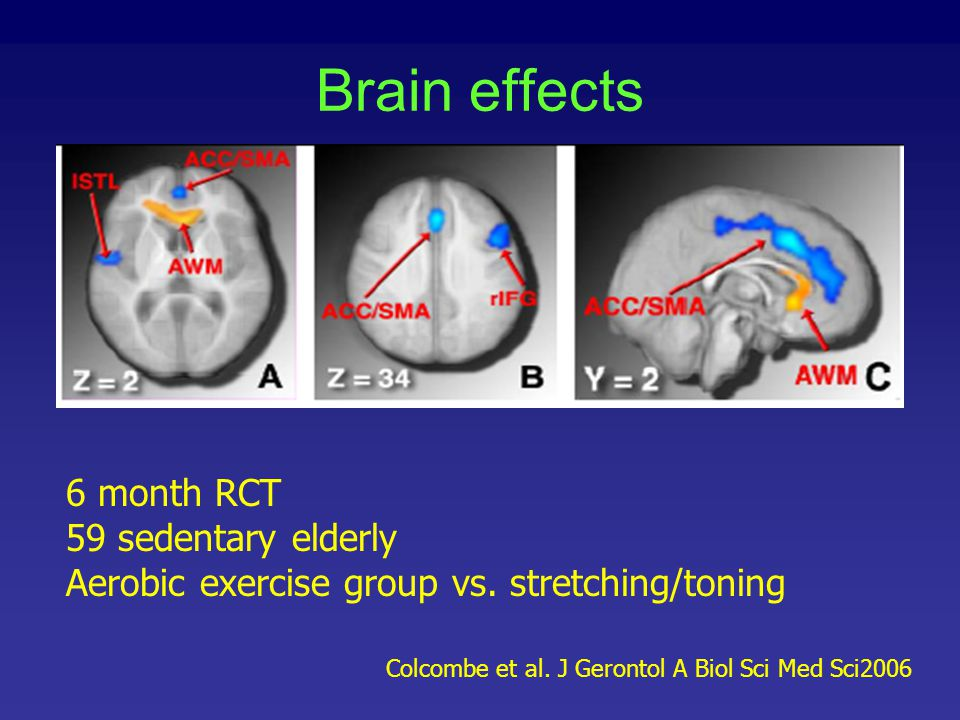 Brain effects 6 month RCT 59 sedentary elderly Aerobic exercise group vs. stretching/toning Colcombe et al. J Gerontol A Biol Sci Med Sci2006