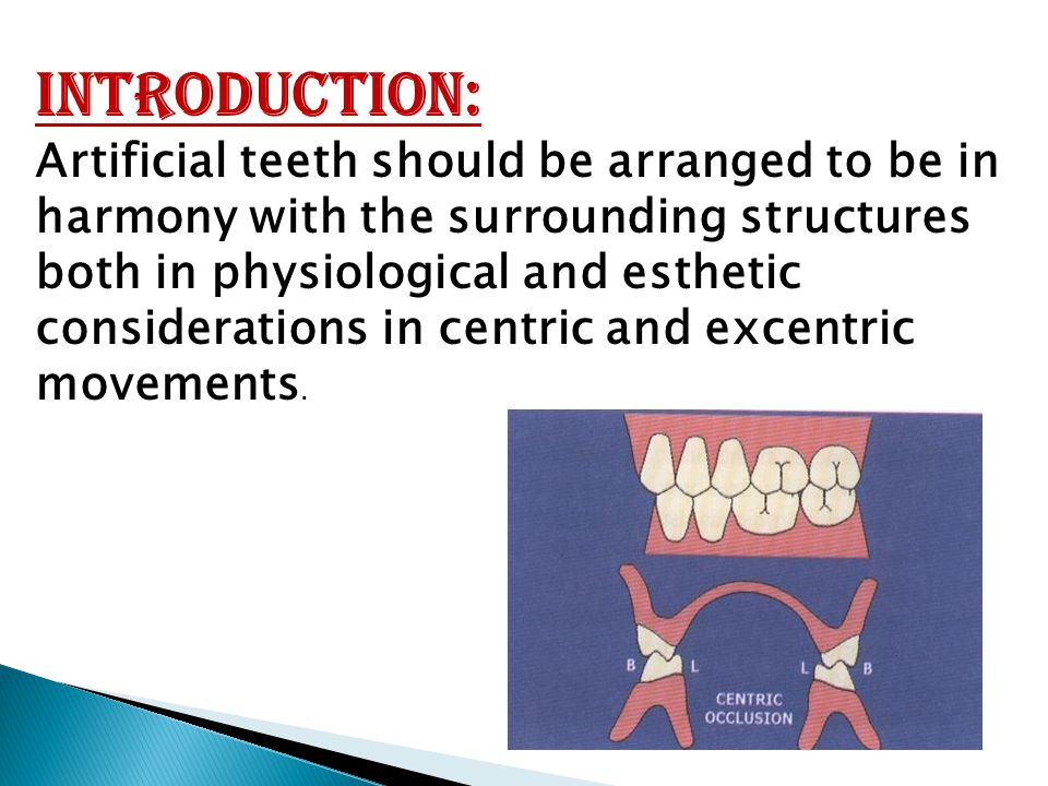 Introduction: Artificial teeth should be arranged to be in harmony with the surrounding structures both in physiological and esthetic considerations i