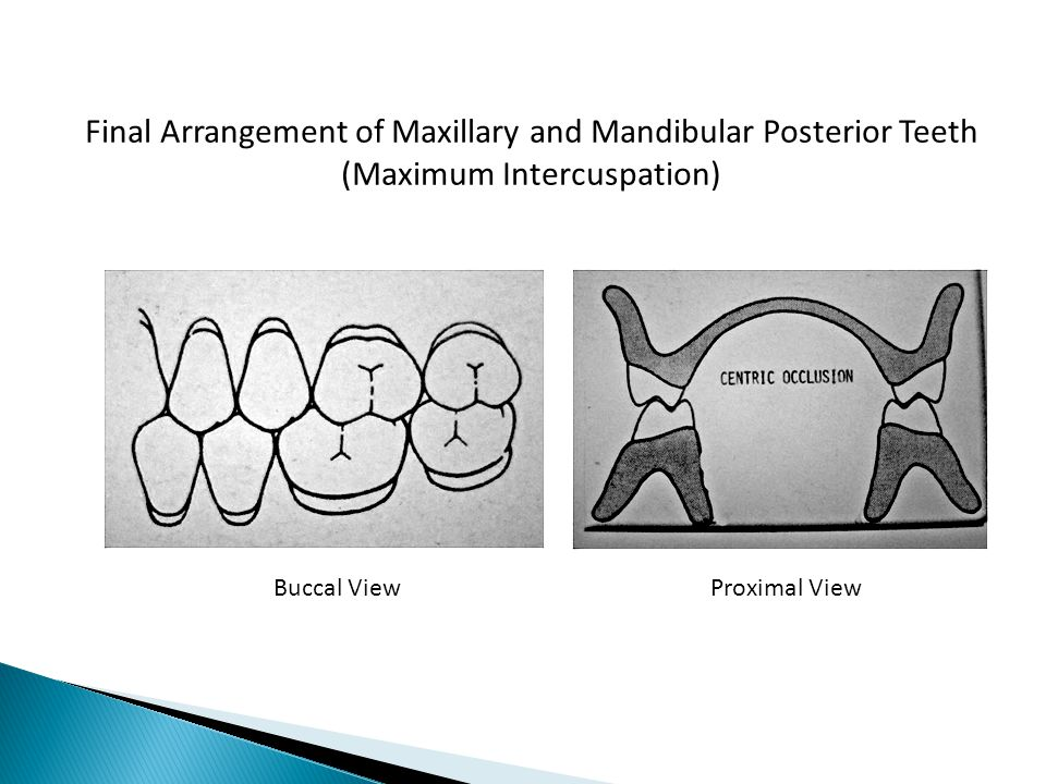 Final Arrangement of Maxillary and Mandibular Posterior Teeth (Maximum Intercuspation) Buccal ViewProximal View