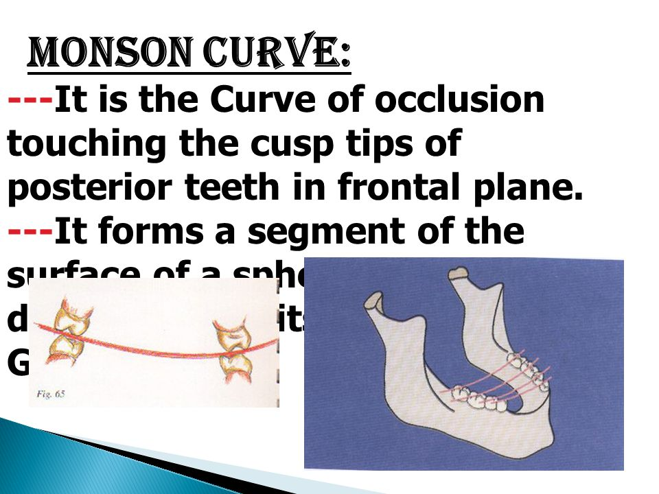 Monson Curve: ---It is the Curve of occlusion touching the cusp tips of posterior teeth in frontal plane. ---It forms a segment of the surface of a sp