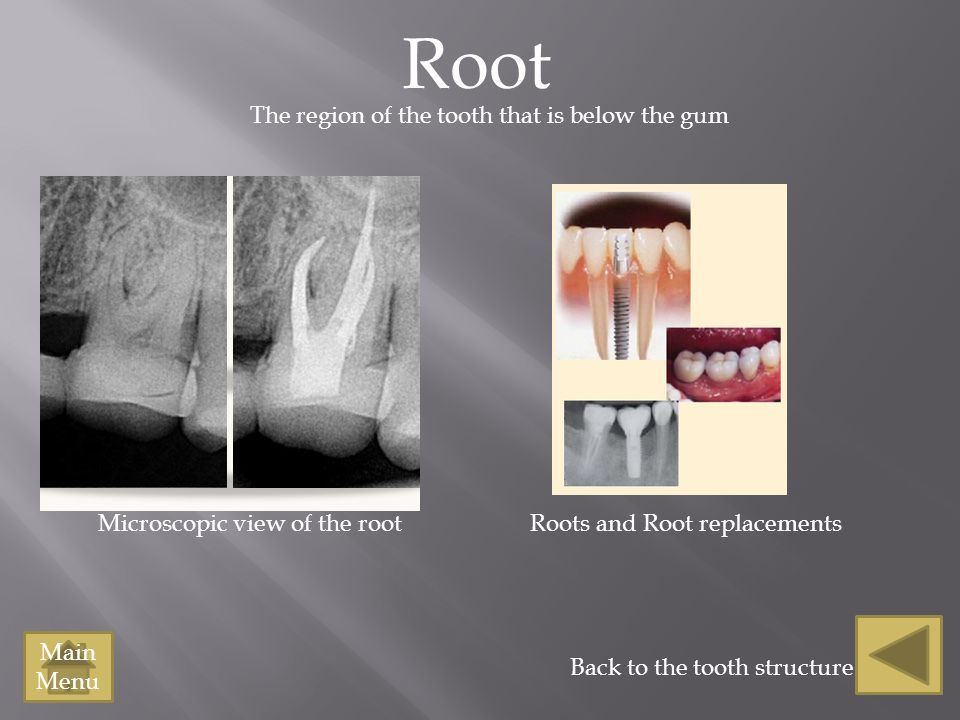 Root Back to the tooth structure Microscopic view of the root Main Menu The region of the tooth that is below the gum Roots and Root replacements