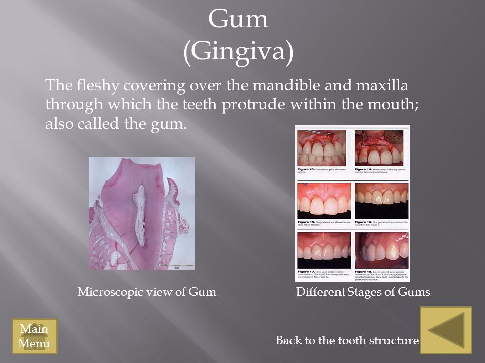 Tooth Structure Picture (Slide 3) Definition of Enamel (Slide 4) Definition of dentine (Slide 5) Dentine Picture (Slide 5) Dentine Picture 2 (Slide 5) Definition of Pulp (Slide 6) Picture of pulp (Slide 6) Picture of Pulp (Slide 6) Definition of Gum ( Slide 7) Picture of gum (Slide 7) Definition of Bone (Slide 8) Picture of bone (Slide 8) Pictures of Bone (Slide 8) Definition of Periodontal Membrane (Slide 9) Definition of Periodontal Membrane (Slide 9) Picture of periodontal membrane(Slide 9) Definition of Cementum (Slide 10) Definition of Cementum (Slide 10) Picture of Cementum (slide 10) Picture of Cementum (Slide 10) Definition of Root Canal (Slide 11) Root canal picture (Slide 11) Picture of Root canal (Slide 11) Definition of Opening at the tip of the root (Slide 12) Definition of Opening at the tip of the root (Slide 12) Picture of the opening at the root (slide 12) Picture of the opening at the root (slide 12) Picture of the opening of the root tip (slide 12) Picture of the opening of the root tip (slide 12) Definition of Root (Slide 13) Picture of Root (slide 13) Definition of Neck (Slide 14) Picture of Neck (Slide 14) Definition of Crown (Slide 15) Picture of the crown (slide 15)