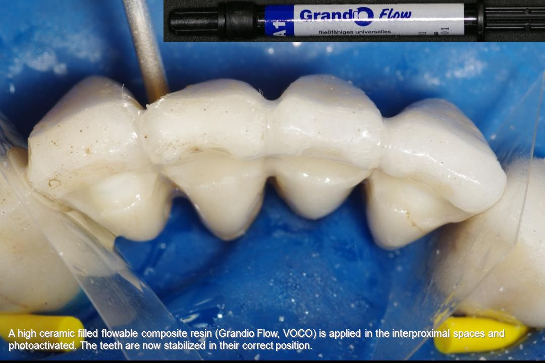 A high ceramic filled flowable composite resin (Grandio Flow, VOCO) is applied in the interproximal spaces and photoactivated.