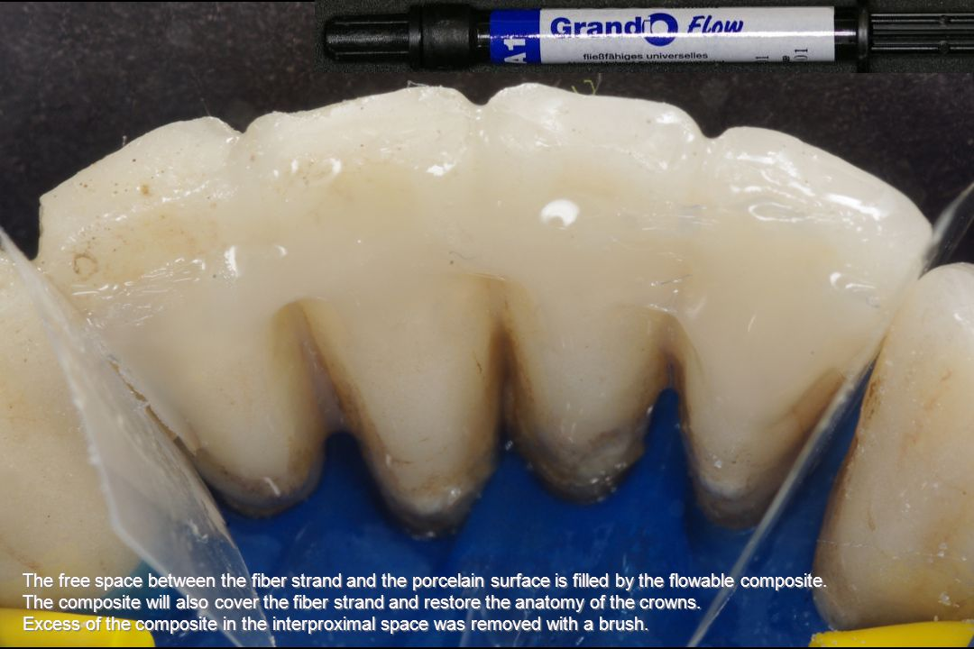The free space between the fiber strand and the porcelain surface is filled by the flowable composite.