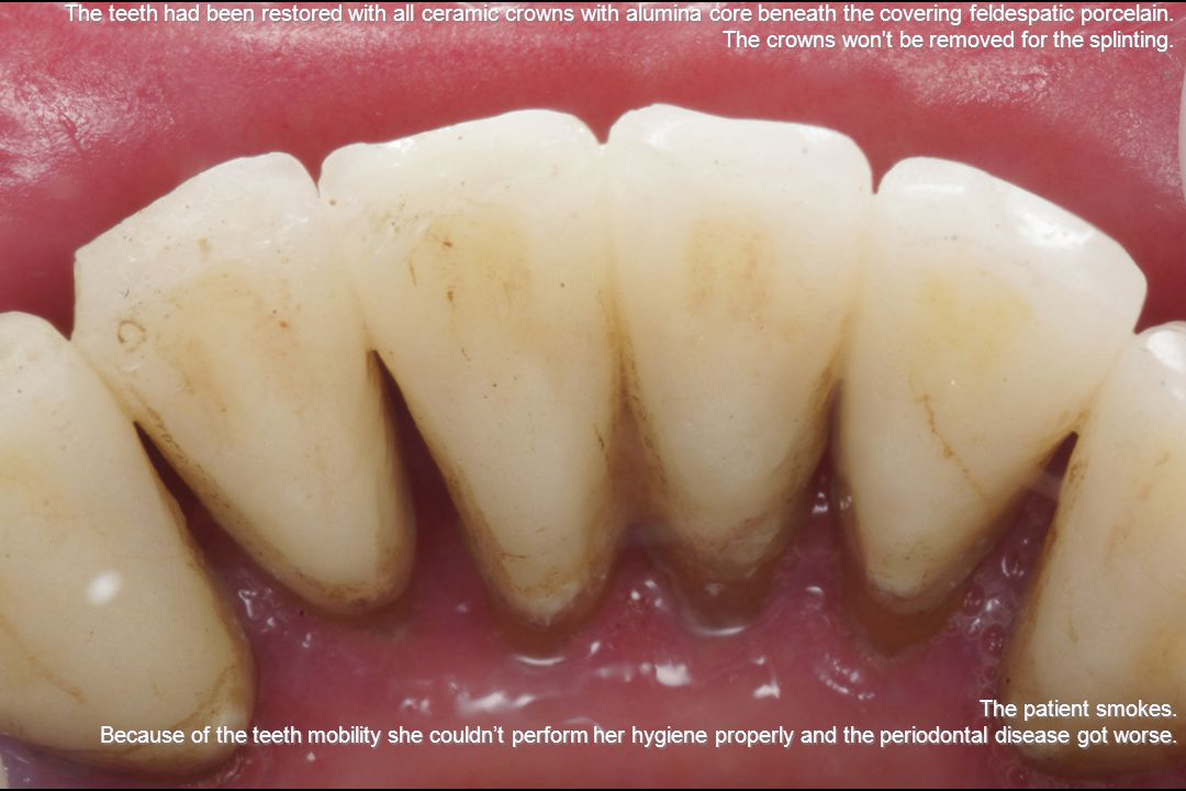 The teeth had been restored with all ceramic crowns with alumina core beneath the covering feldespatic porcelain.