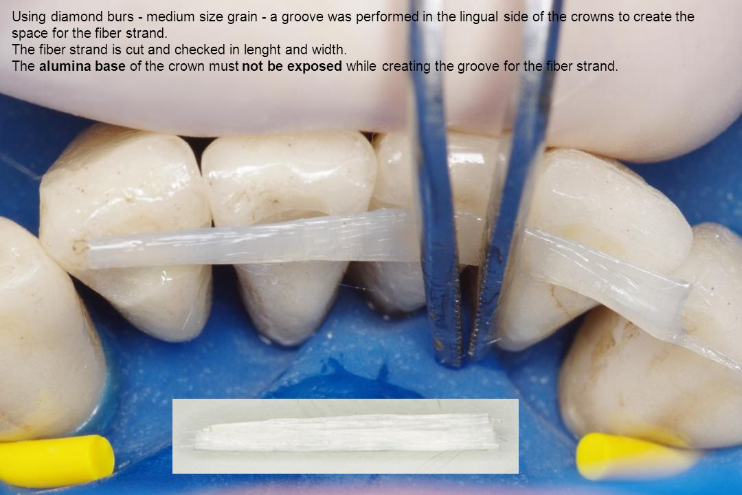 Using diamond burs - medium size grain - a groove was performed in the lingual side of the crowns to create the space for the fiber strand.