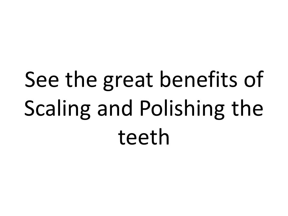 See the great benefits of Scaling and Polishing the teeth