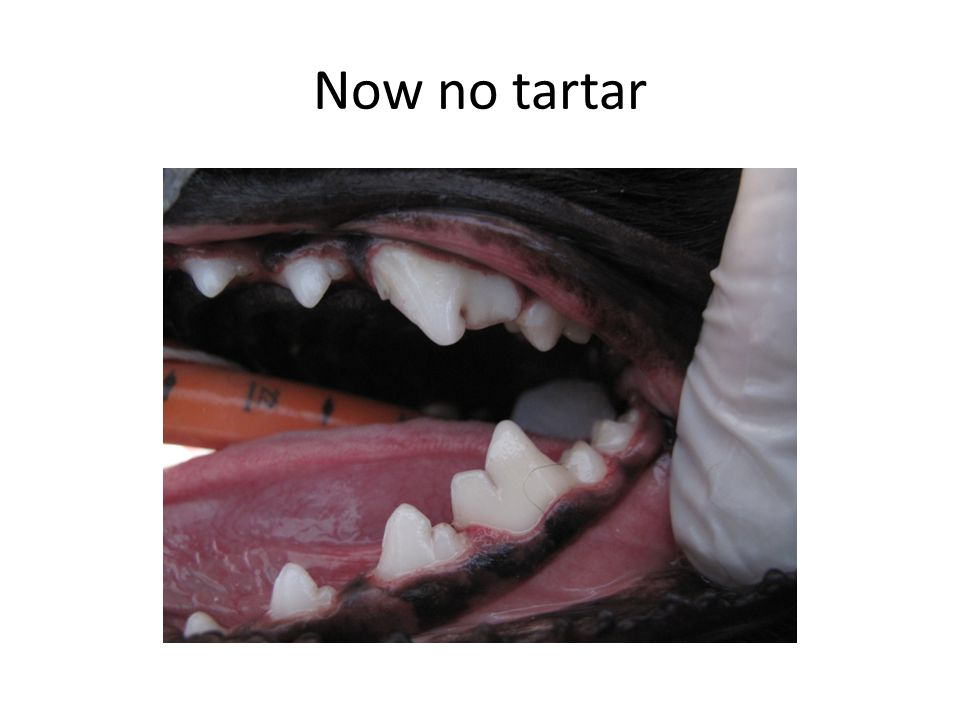 Now no tartar
