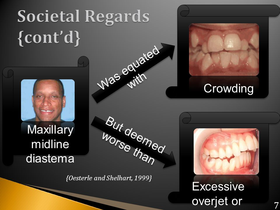 Maxillary midline diastema Was equated with But deemed worse than Crowding Excessive overjet or Protruding incisors {Oesterle and Shelhart, 1999} 7
