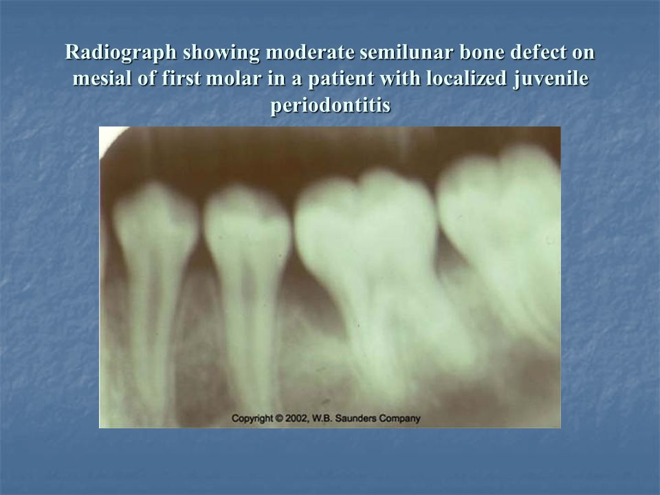 Radiograph showing moderate semilunar bone defect on mesial of first molar in a patient with localized juvenile periodontitis
