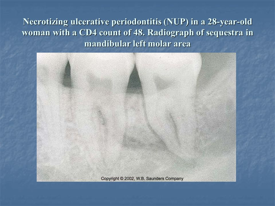 Necrotizing ulcerative periodontitis (NUP) in a 28-year-old woman with a CD4 count of 48. Radiograph of sequestra in mandibular left molar area