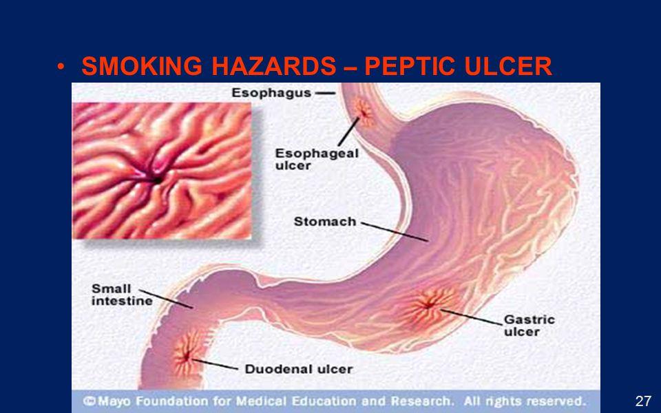 27 SMOKING HAZARDS – PEPTIC ULCER