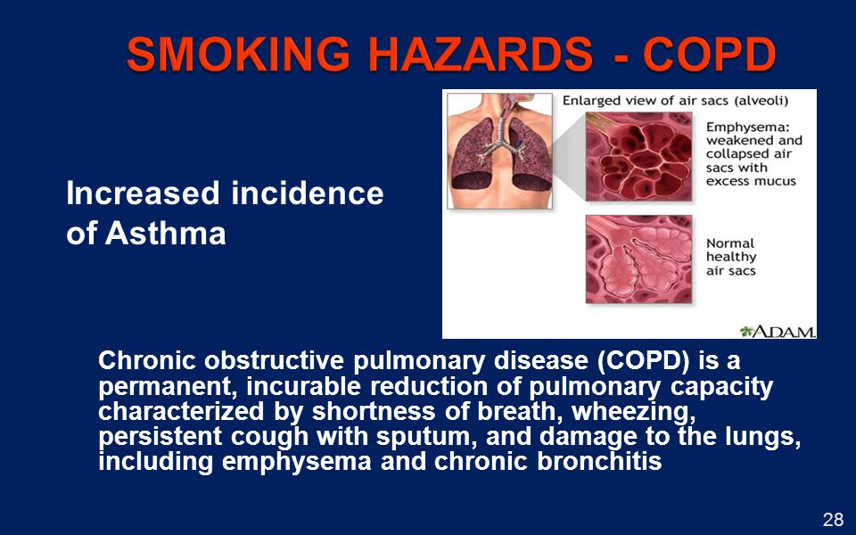 28 Increased incidence of Asthma Chronic obstructive pulmonary disease (COPD) is a permanent, incurable reduction of pulmonary capacity characterized by shortness of breath, wheezing, persistent cough with sputum, and damage to the lungs, including emphysema and chronic bronchitis