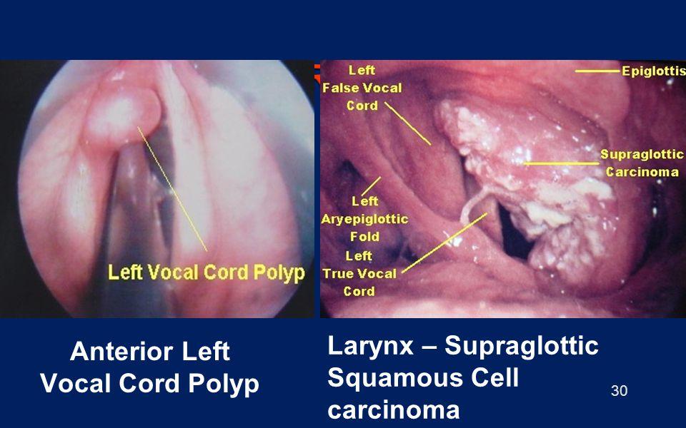 30 Anterior Left Vocal Cord Polyp Larynx – Supraglottic Squamous Cell carcinoma