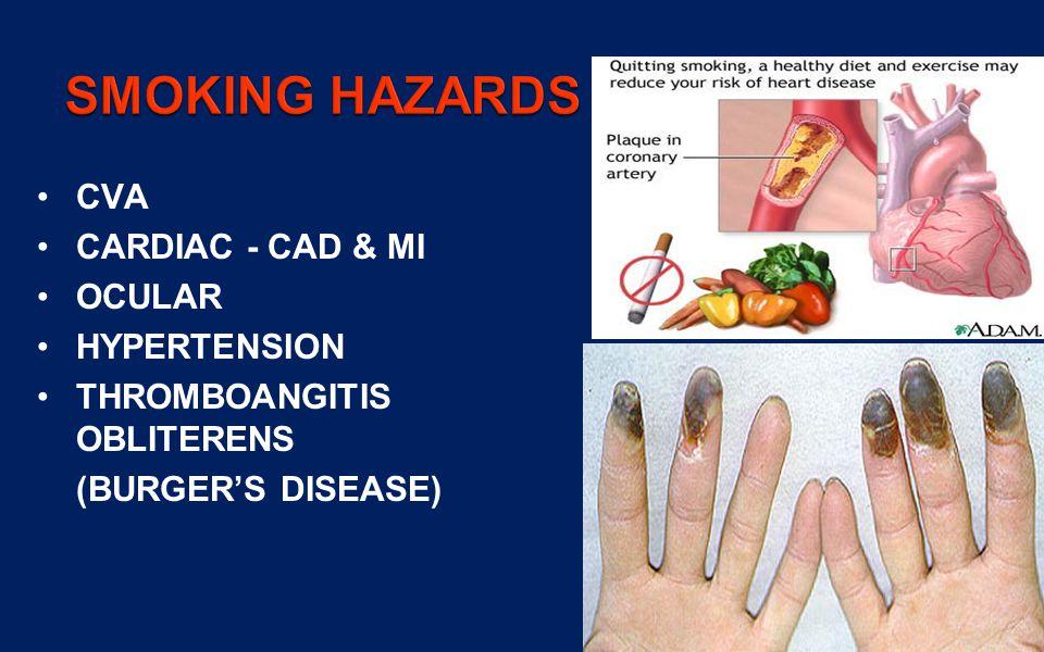 31 CVA CARDIAC - CAD & MI OCULAR HYPERTENSION THROMBOANGITIS OBLITERENS (BURGERS DISEASE)