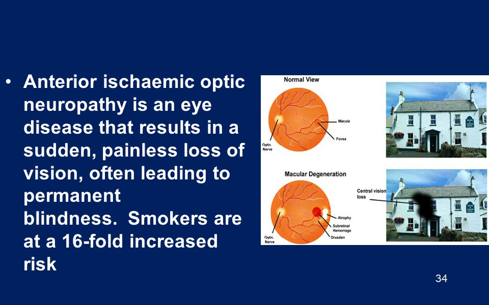 34 Anterior ischaemic optic neuropathy is an eye disease that results in a sudden, painless loss of vision, often leading to permanent blindness. Smok