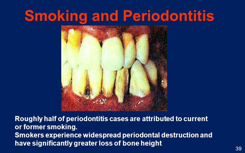 39 Smoking and Periodontitis Roughly half of periodontitis cases are attributed to current or former smoking. Smokers experience widespread periodonta