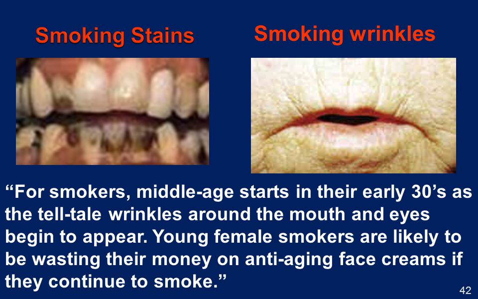 42 Smoking wrinkles For smokers, middle-age starts in their early 30s as the tell-tale wrinkles around the mouth and eyes begin to appear. Young femal