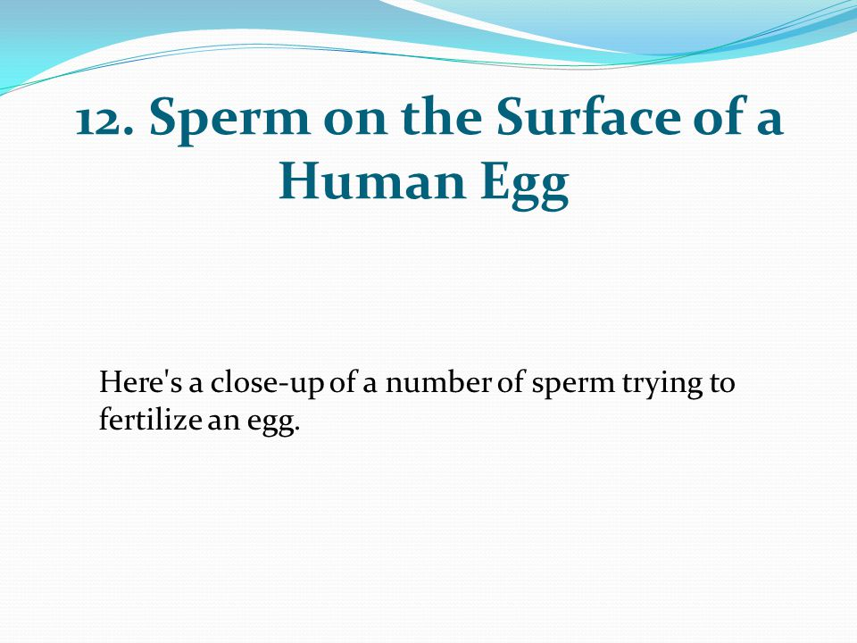 12. Sperm on the Surface of a Human Egg Here's a close-up of a number of sperm trying to fertilize an egg.