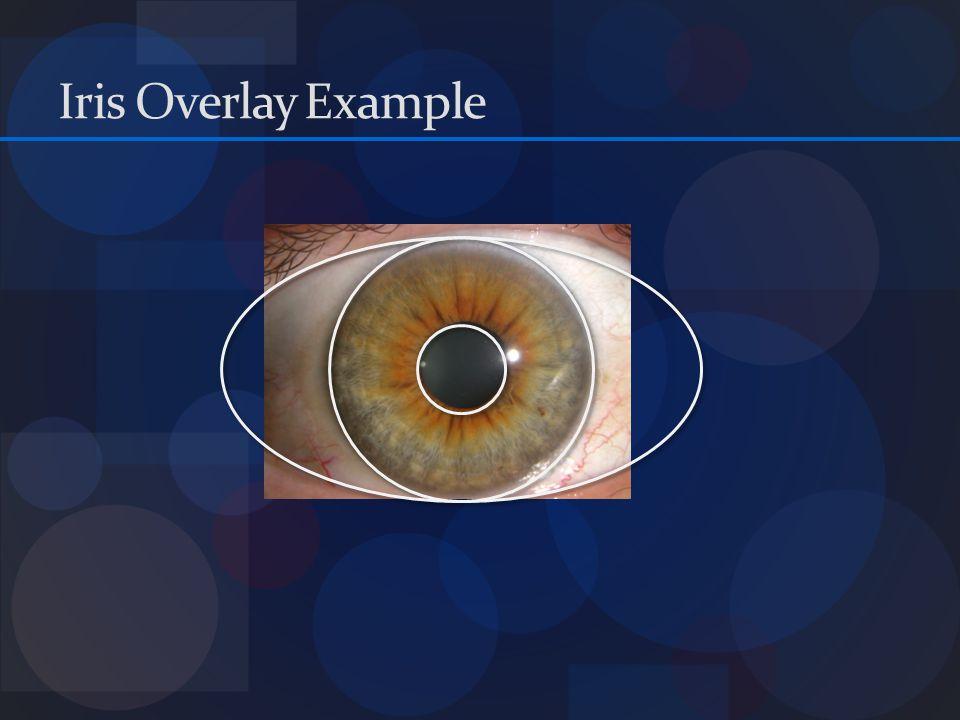 Iris Overlay Example