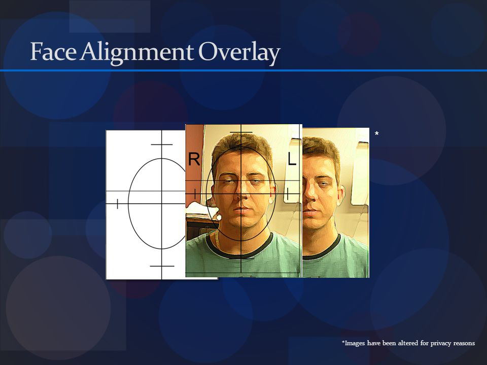 Face Alignment Overlay * *Images have been altered for privacy reasons
