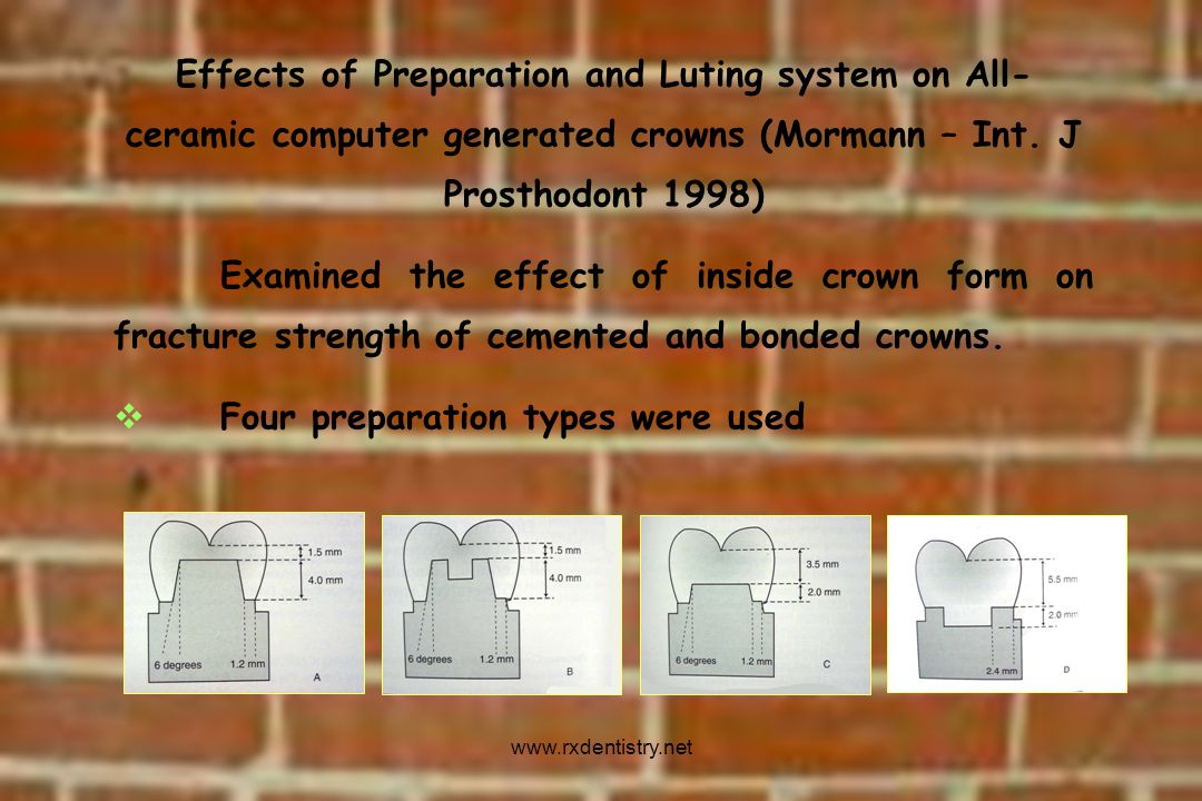 Effects of Preparation and Luting system on All- ceramic computer generated crowns (Mormann – Int. J Prosthodont 1998) Examined the effect of inside c