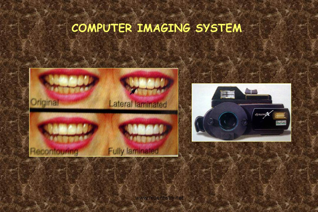 FUNDAMENTAL PRINCIPLES OF CAD/CAM SYSTEM CSD CAD CAM www.rxdentistry.net
