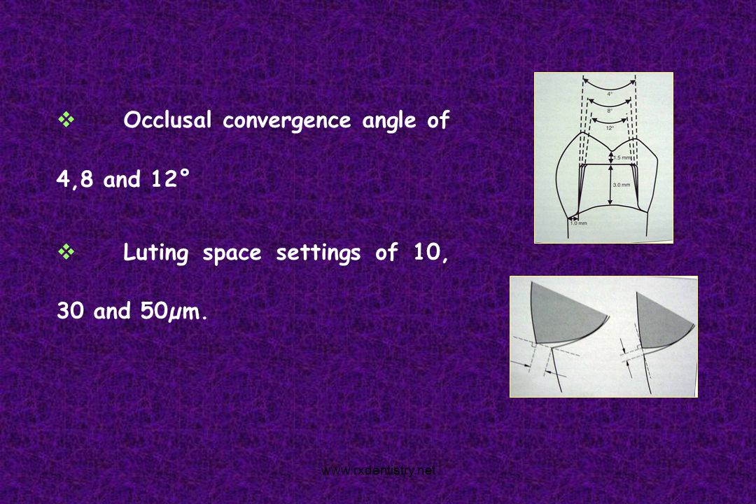 Occlusal convergence angle of 4,8 and 12° Luting space settings of 10, 30 and 50µm. www.rxdentistry.net