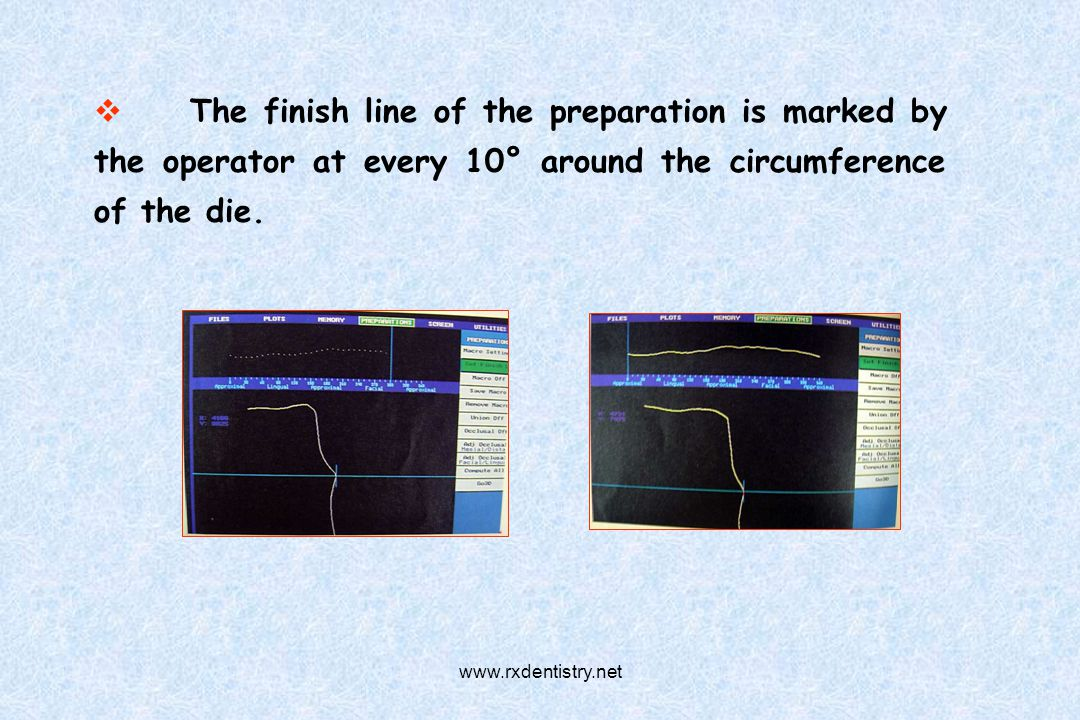 The finish line of the preparation is marked by the operator at every 10° around the circumference of the die. www.rxdentistry.net