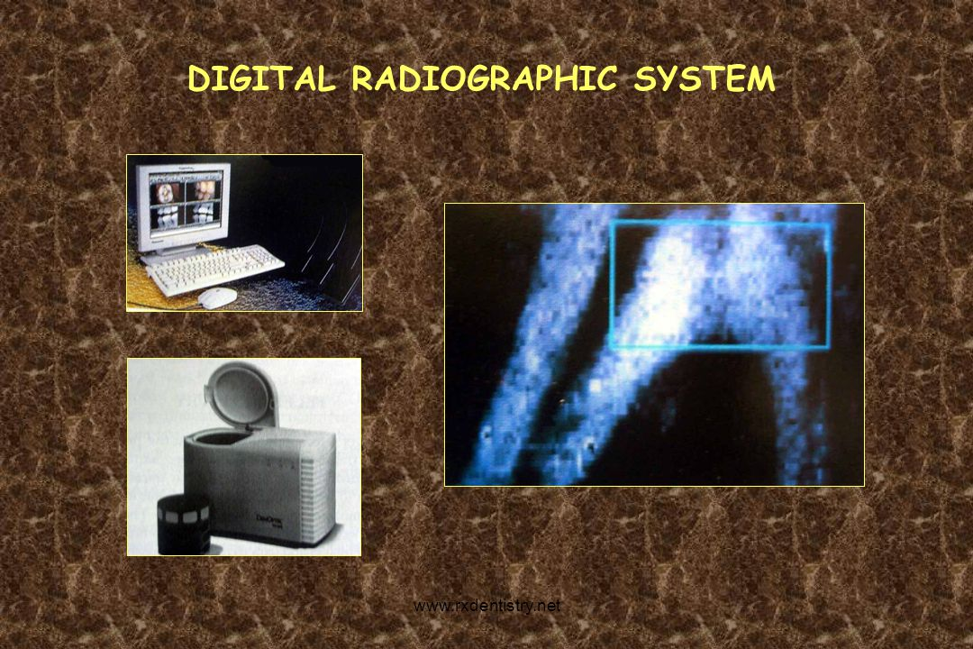 DIGITAL RADIOGRAPHIC SYSTEM www.rxdentistry.net