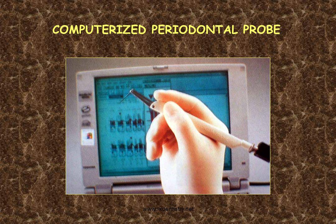 COMPUTERIZED PERIODONTAL PROBE www.rxdentistry.net