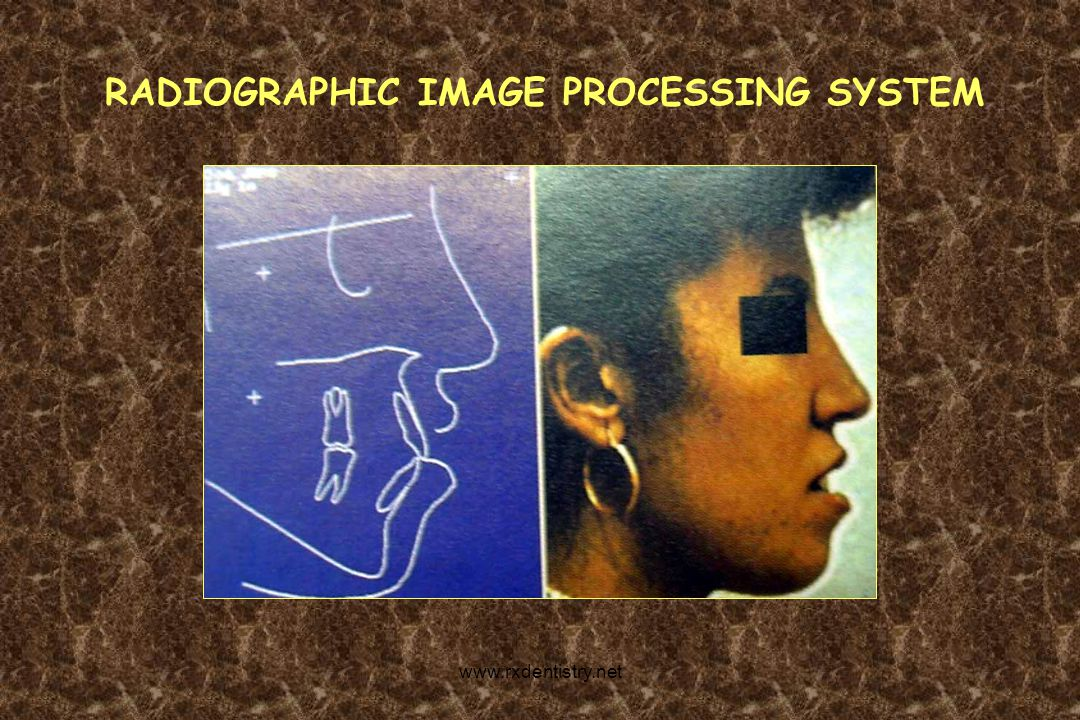 RADIOGRAPHIC IMAGE PROCESSING SYSTEM www.rxdentistry.net
