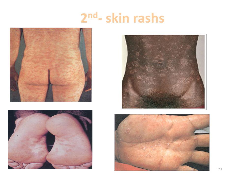2 nd - skin rashs 73